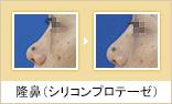 隆鼻(シリコンプロテーゼ)