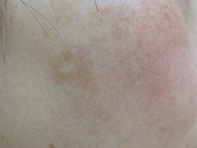 トレチノイン症例写真 施術後 老人性色素斑A