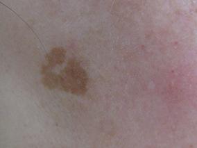 トレチノイン症例写真 施術前 老人性色素斑A