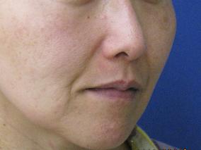 美肌レーザーライムライトの症例 施術後