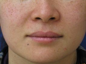 美肌レーザーライムライトの症例 施術前