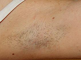 医療脱毛についての症例写真