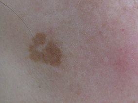 美容内服症例写真 施術前 老人性色素斑A