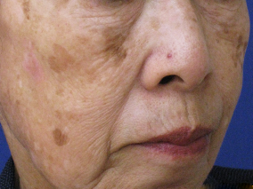 美容内服症例写真 施術前 老人性色素斑B