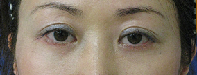 目の下のたるみとり 施術後