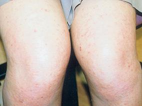 アトピー皮膚内科についての症例写真