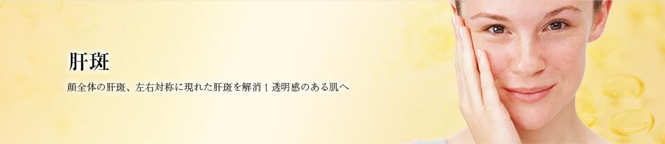 肝斑(かんぱん)