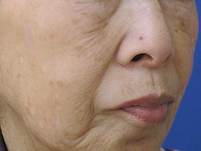 アクシダーム 施術後 老人性色素斑